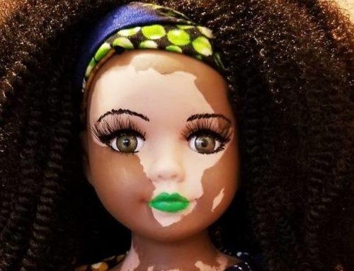 Bonecas com vitiligo